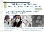 sars the first major new infectious disease of the 21st century5