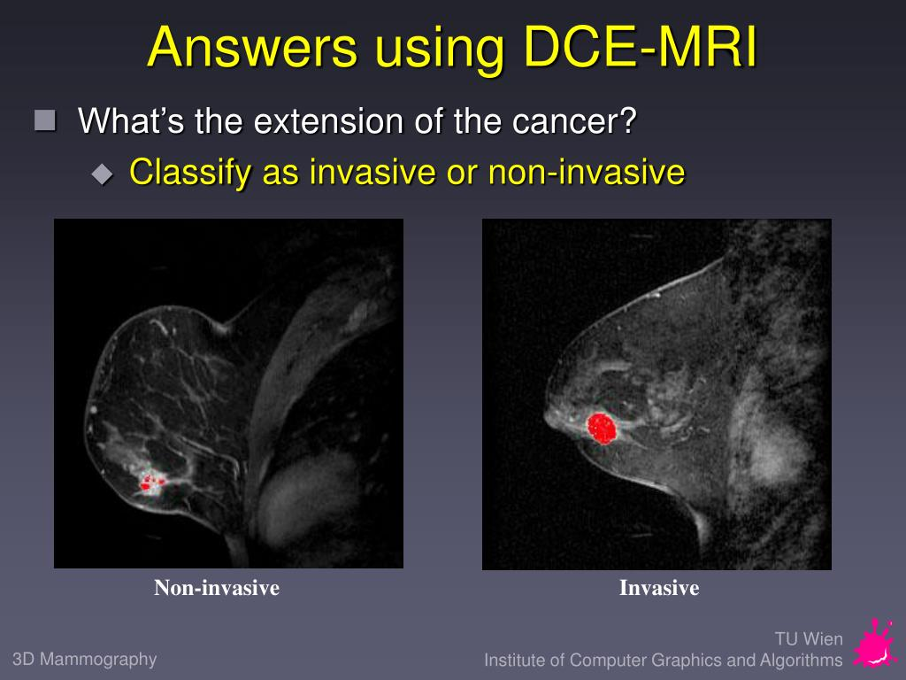 Answers using DCE-MRI