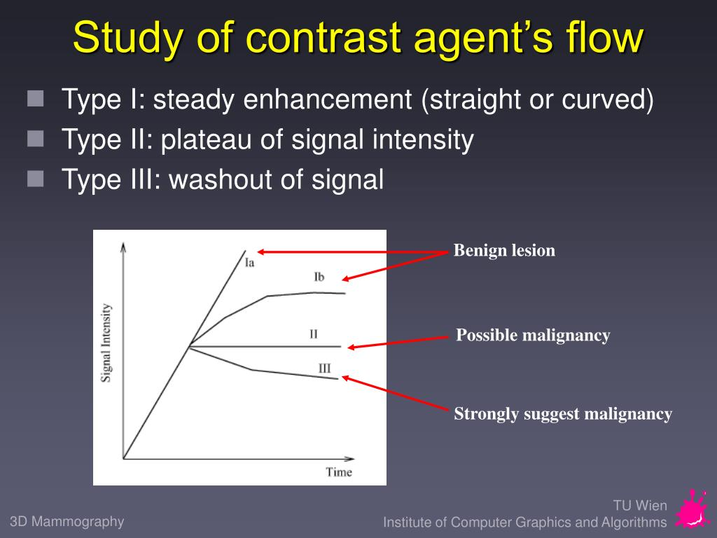 Study of contrast agent's flow