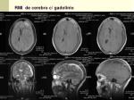 rmi de cerebro c gadolinio