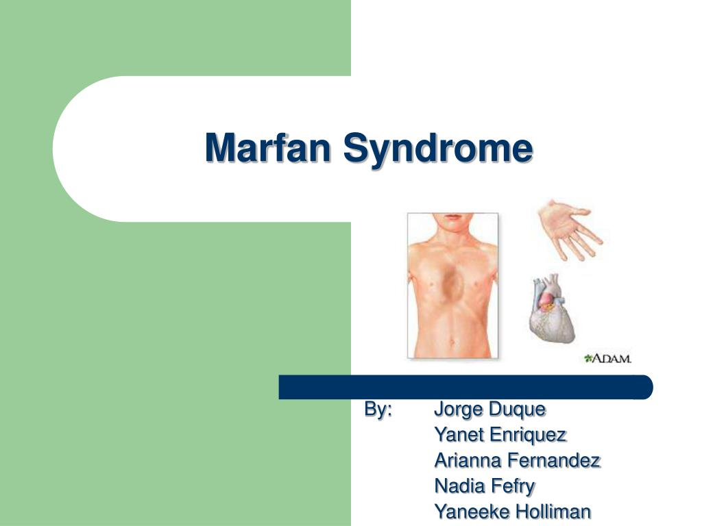 marfan syndrome l.