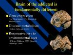 brain of the addicted is fundamentally different