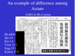 an example of difference among asians sars hla typing