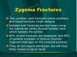 zygoma fractures