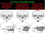 le fort classification