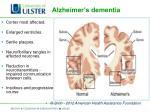 alzheimer s dementia