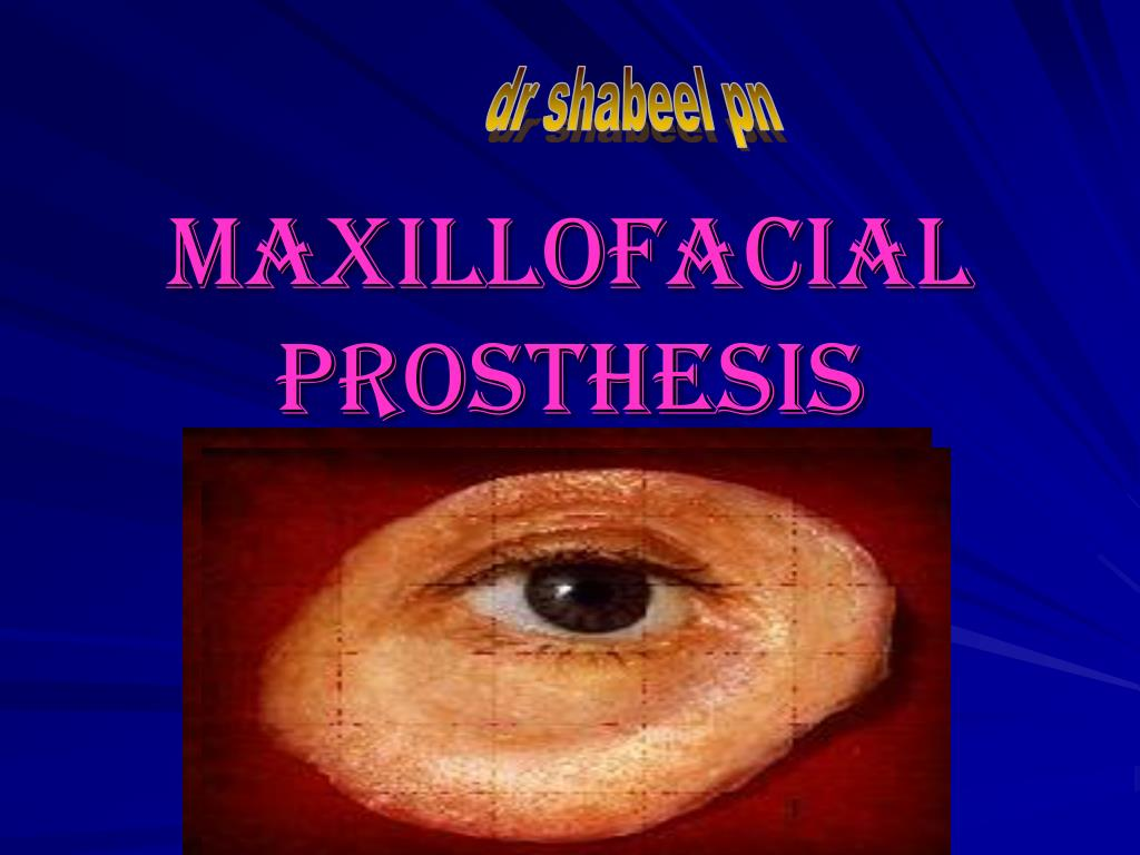maxillofacial prosthesis l.