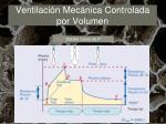 ventilaci n mec nica controlada por volumen10