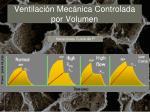 ventilaci n mec nica controlada por volumen11