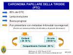 carcinoma papillare della tiroide ptc
