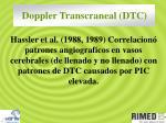 doppler transcraneal dtc