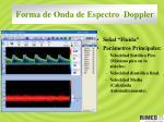 forma de onda de espectro doppler