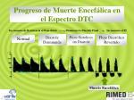 progreso de muerte encef lica en el espectro dtc