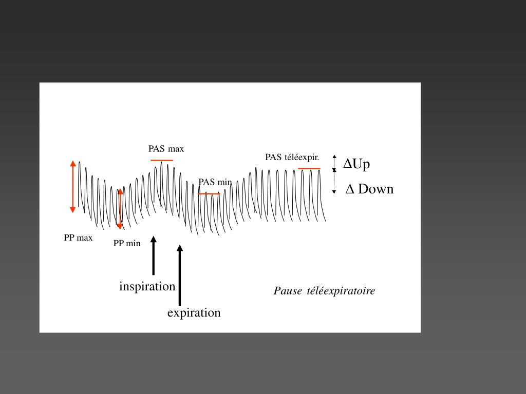PPT - Déterminants de la pression artérielle PowerPoint..