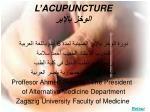 l acupuncture
