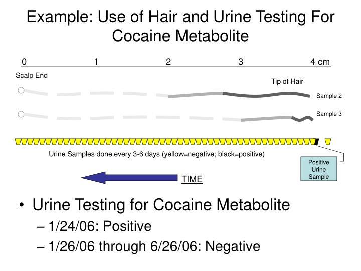 lorazepam metabolites in urine