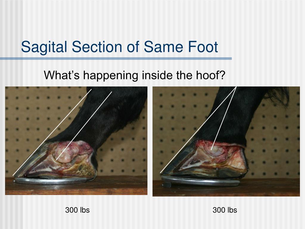 Sagital Section of Same Foot