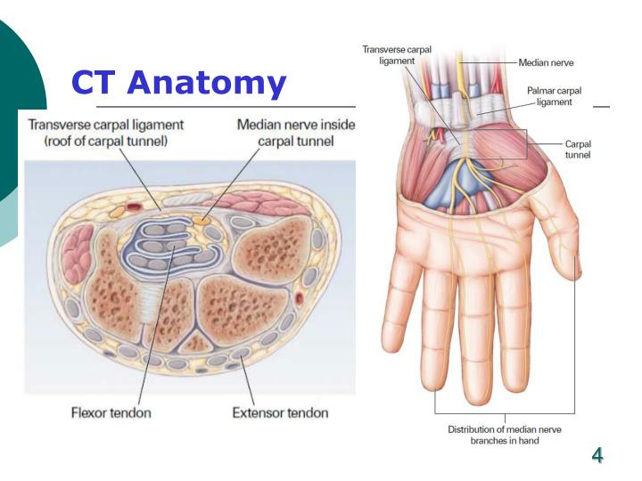 Ppt Carpal Tunnel Syndrome Powerpoint Presentation Id722021