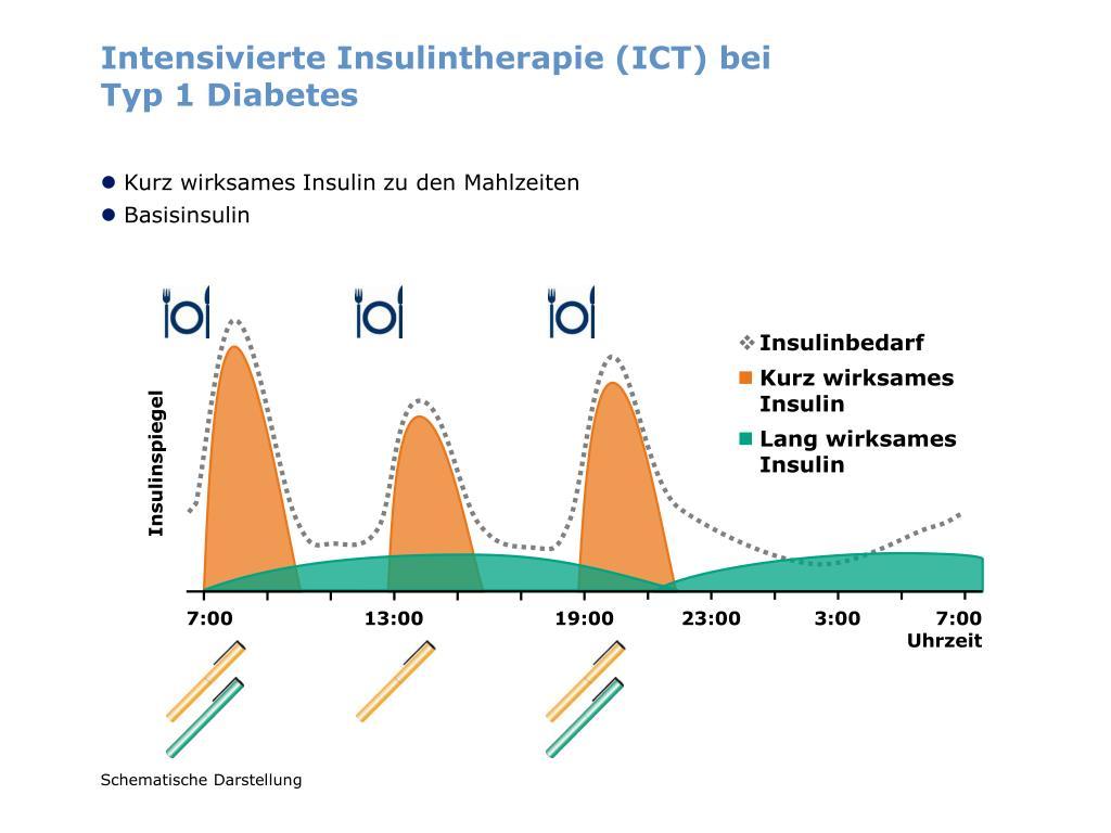 Intensivierte Insulintherapie (ICT) bei