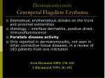 dermatomyositis centripetal flagellete erythema