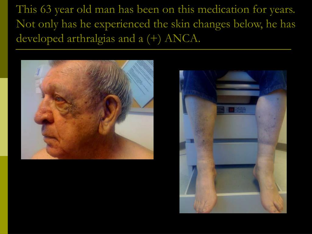 This 63 year old man has been on this medication for years. Not only has he experienced the skin changes below, he has developed arthralgias and a (+) ANCA.