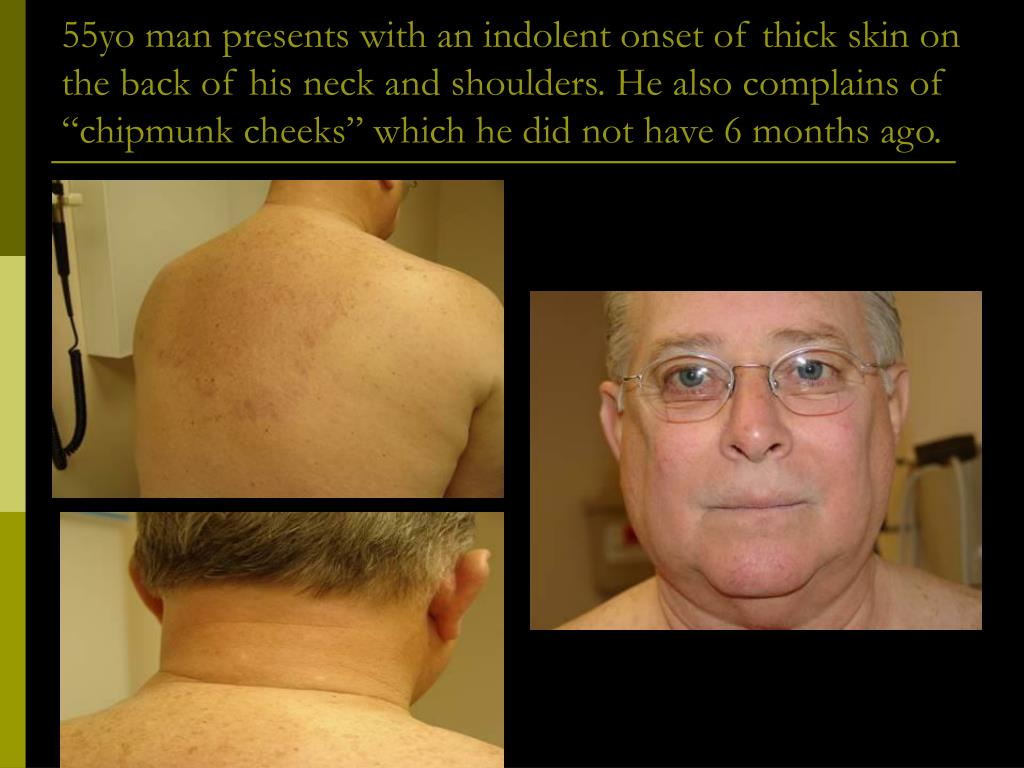 """55yo man presents with an indolent onset of thick skin on the back of his neck and shoulders. He also complains of """"chipmunk cheeks"""" which he did not have 6 months ago."""