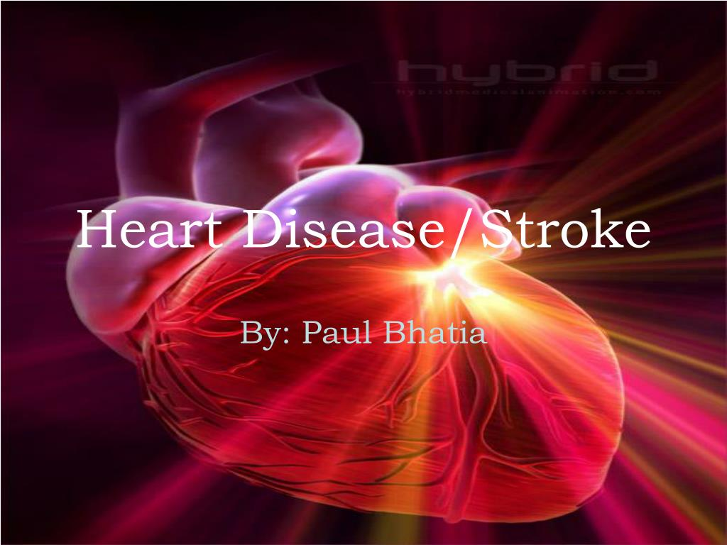heart disease stroke l.