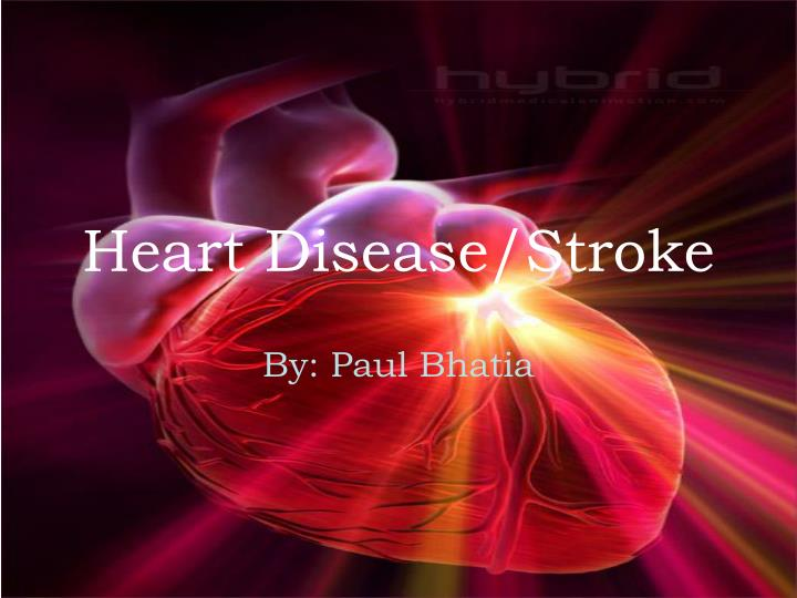 Heart disease stroke