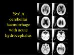 yes a cerebellar haemorrhage with acute hydrocephalus