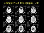 computerised tomography ct