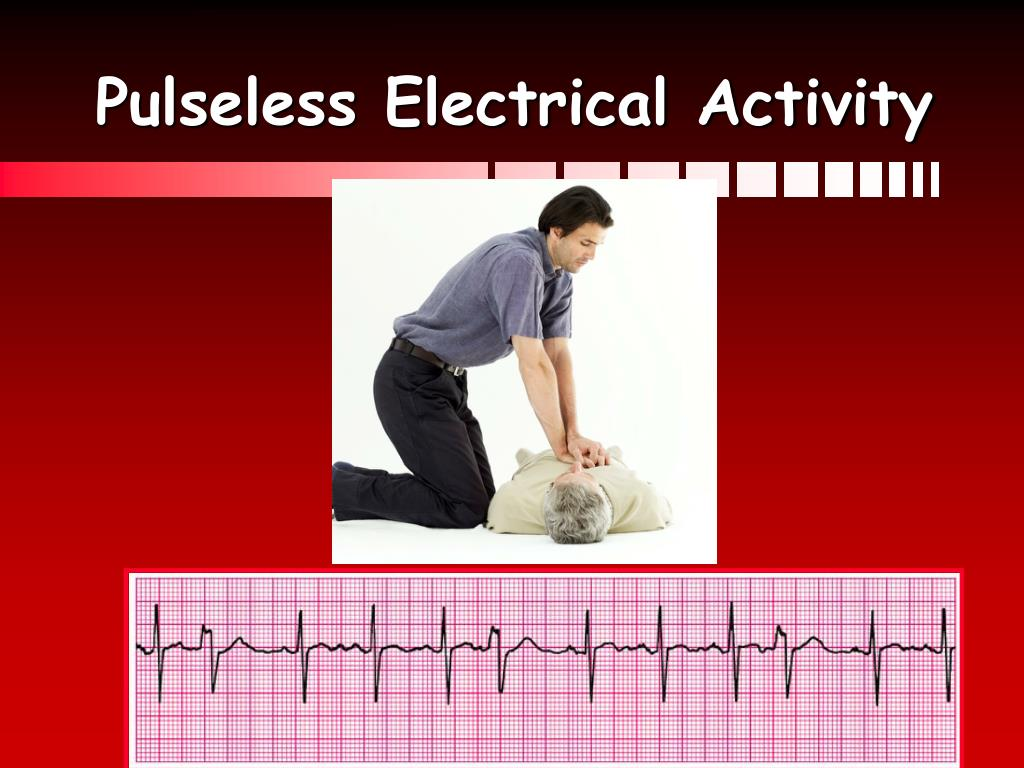 Pulseless Electrical Activity