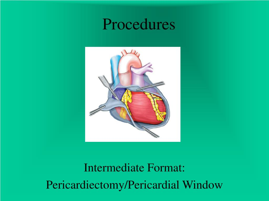 procedures l.