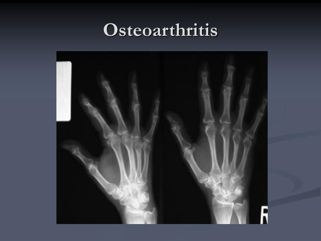 osteoarthritis l.