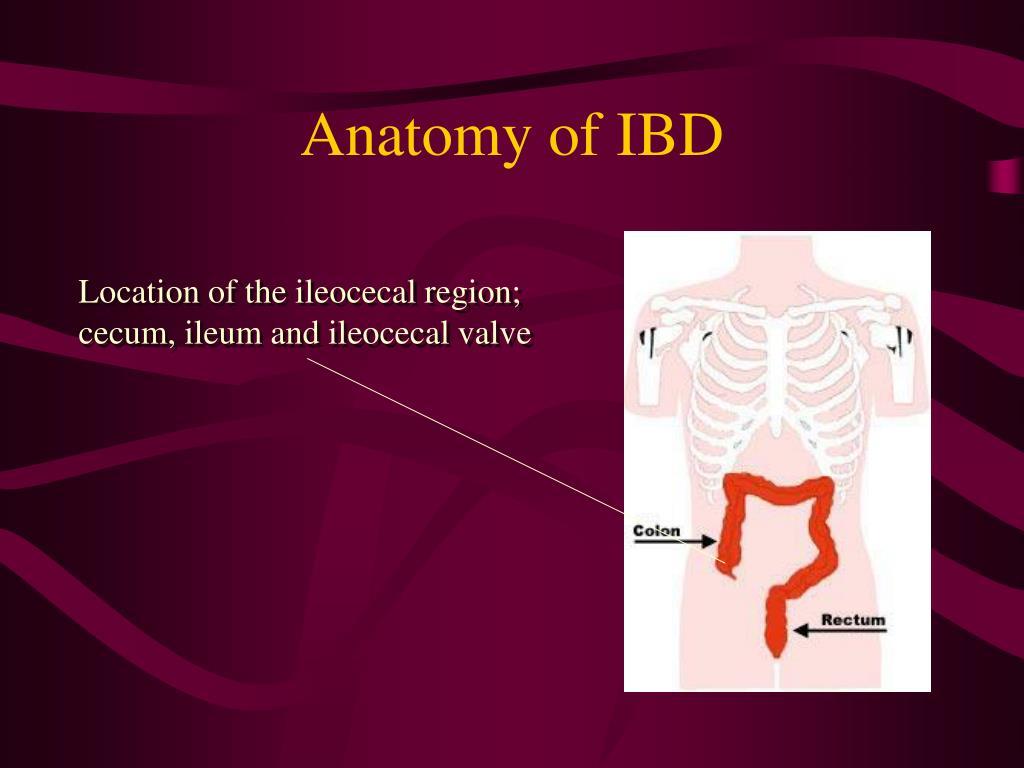 Anatomy of IBD