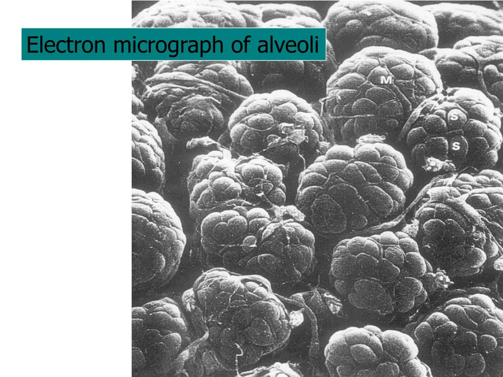 Electron micrograph of alveoli