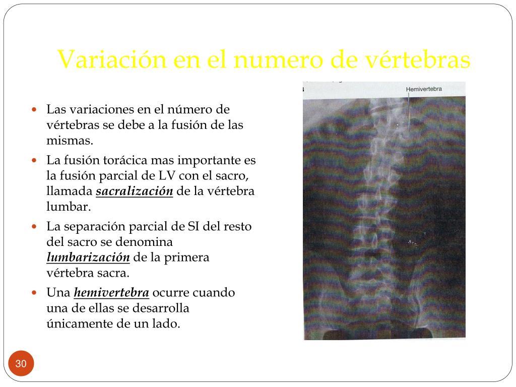 Variación en el numero de vértebras
