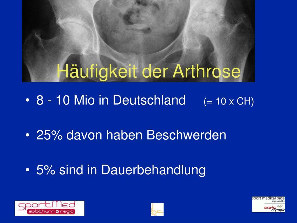 Häufigkeit der Arthrose