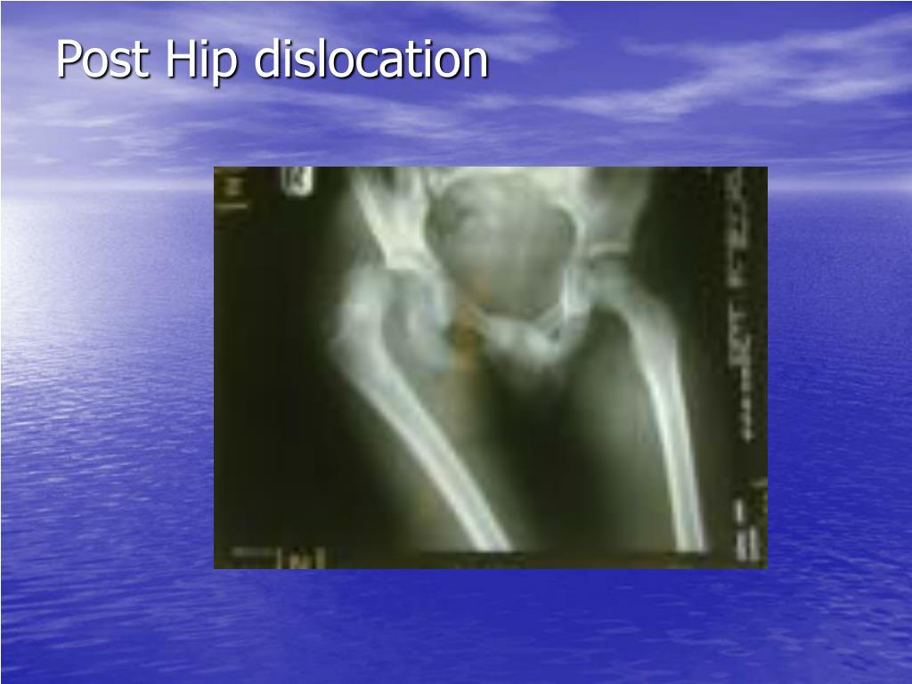 Post Hip dislocation
