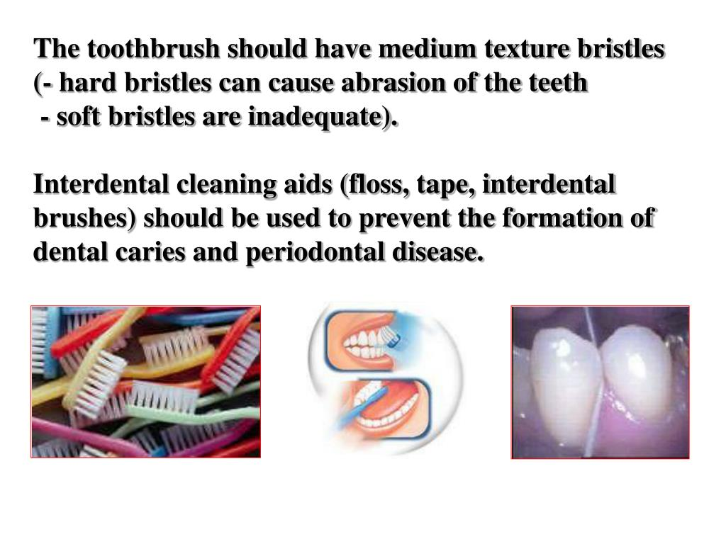The toothbrush should have medium texture bristles (- hard bristles can cause abrasion of the teeth