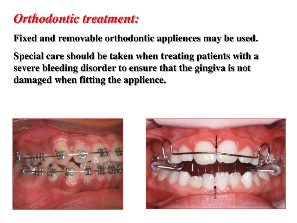 Orthodontic treatment: