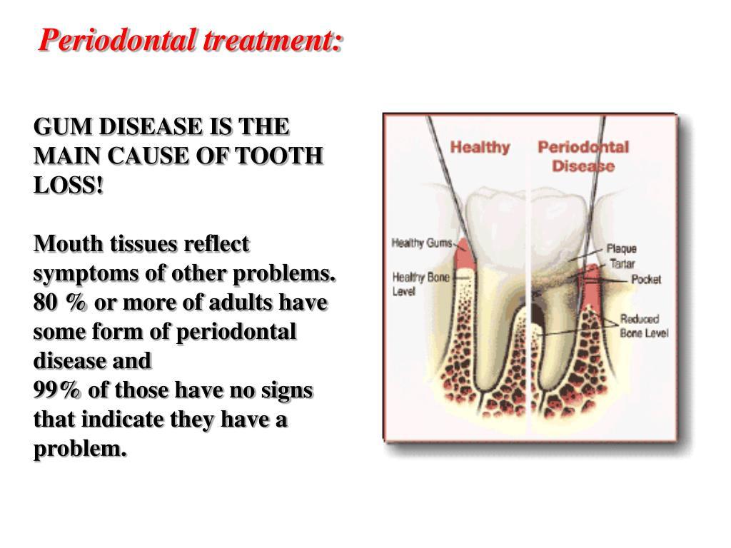 Periodontal treatment: