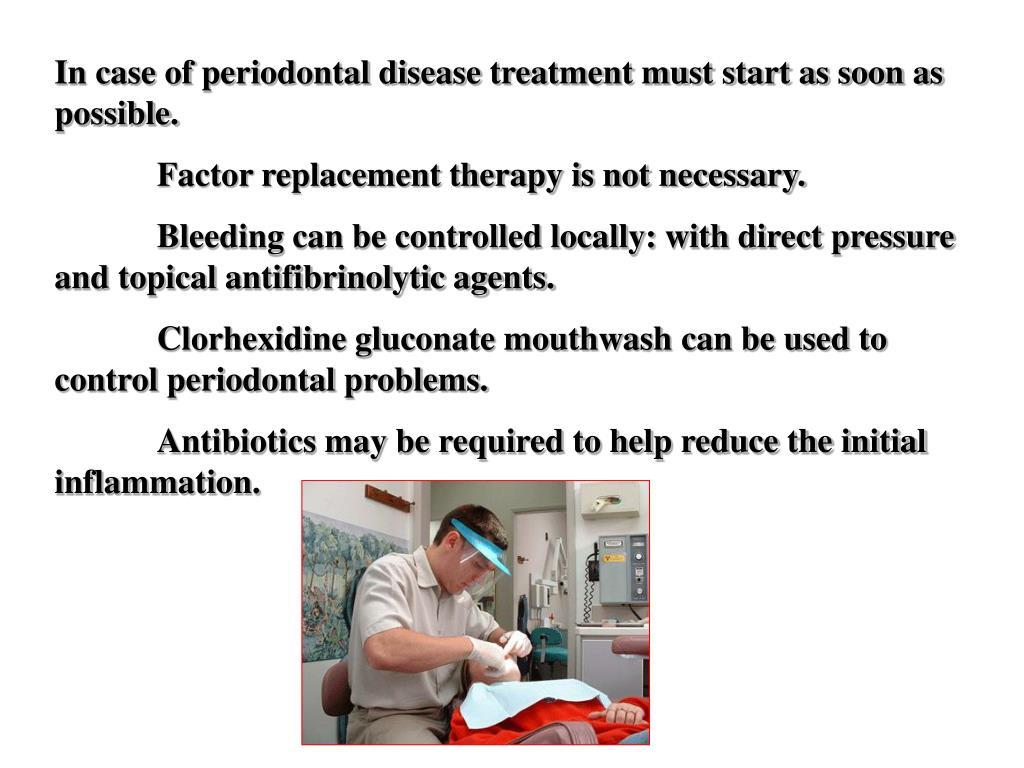 In case of periodontal disease treatment must start as soon as possible.
