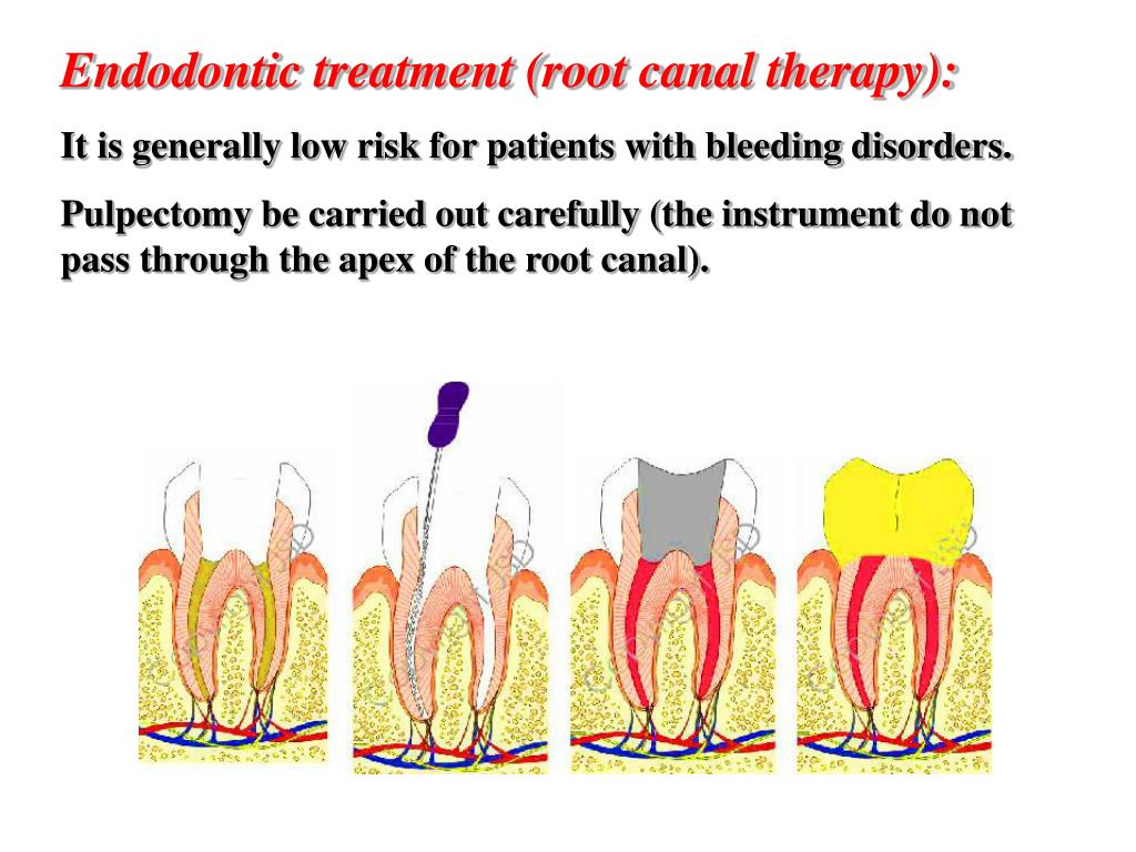 Endodontic treatment (root canal therapy):