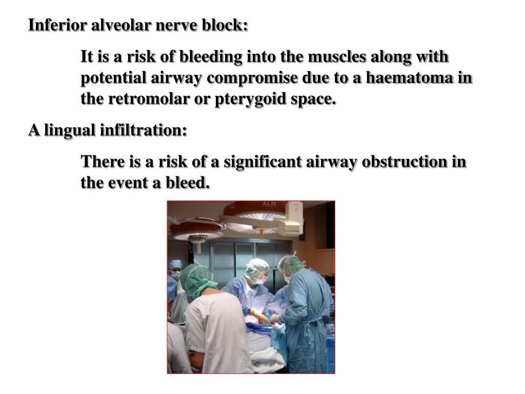 Inferior alveolar nerve block: