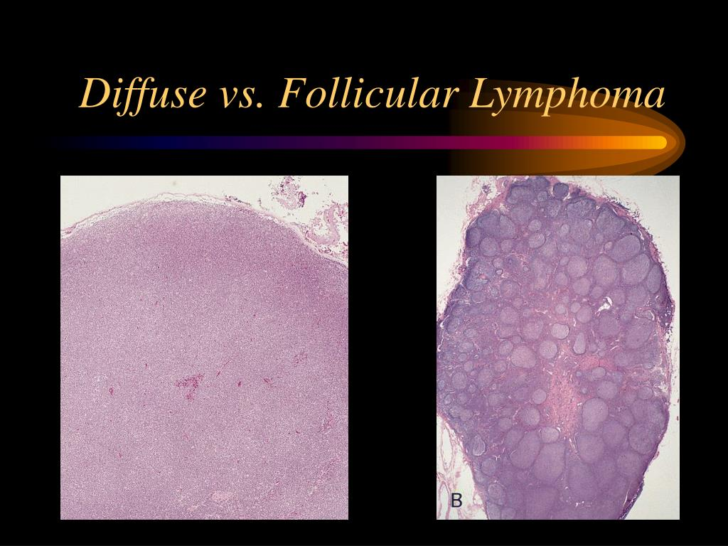 Diffuse vs. Follicular Lymphoma