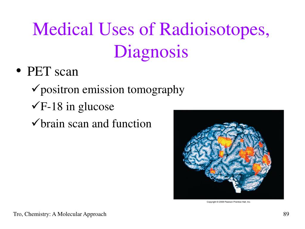 Medical Uses of Radioisotopes,