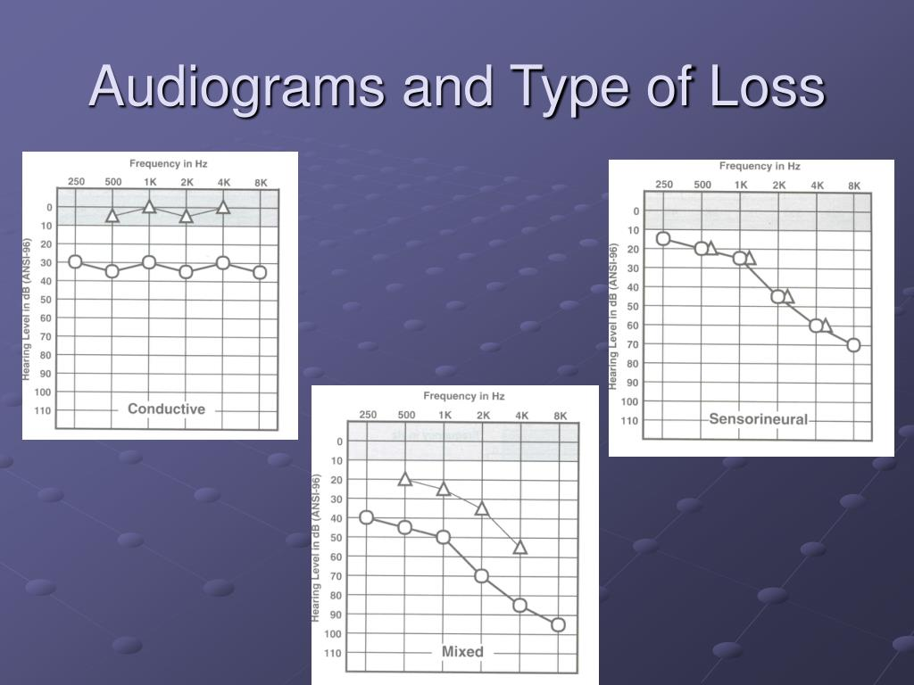 Audiograms and Type of Loss