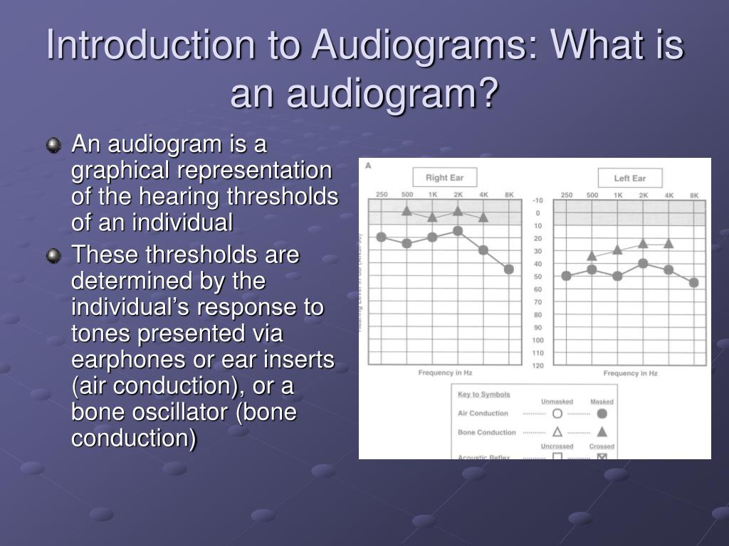 Introduction to Audiograms: What is an audiogram?