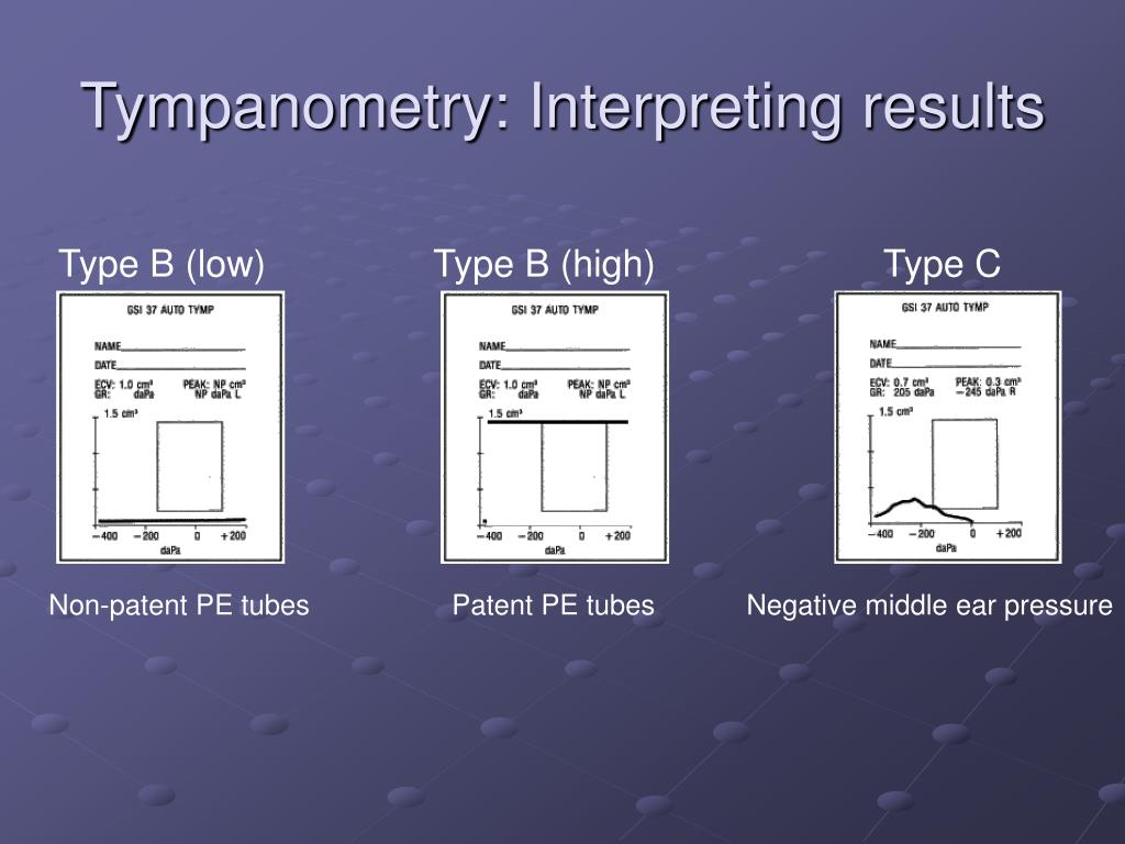 Tympanometry: Interpreting results