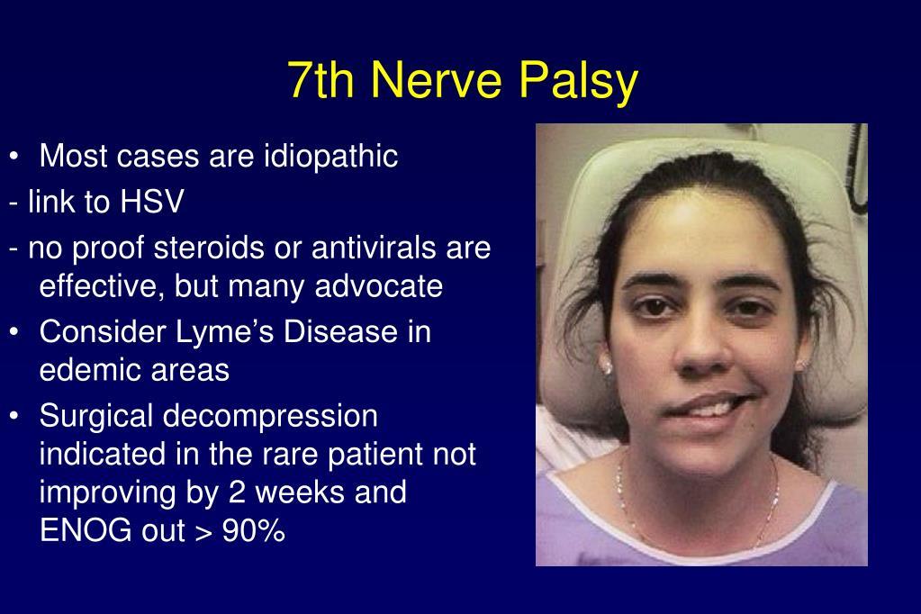 7th Nerve Palsy